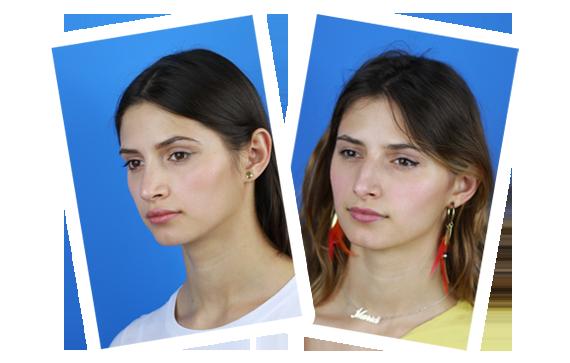 antes y después operación nariz Pablo Casas