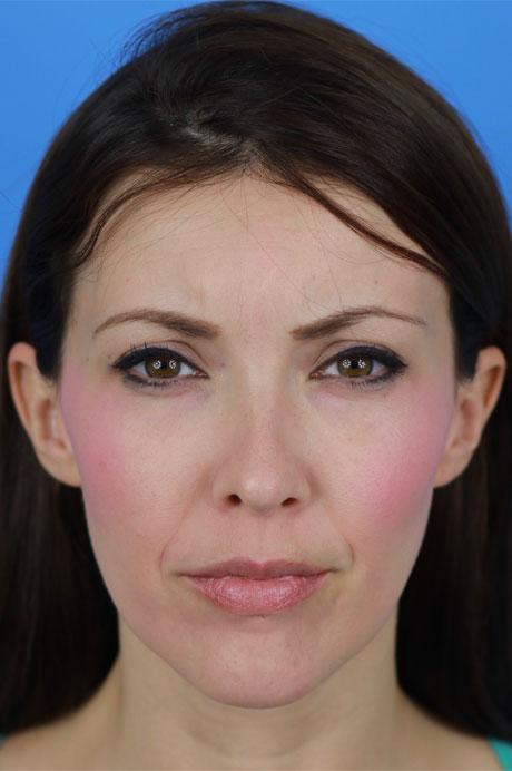 Después operación nariz mujer