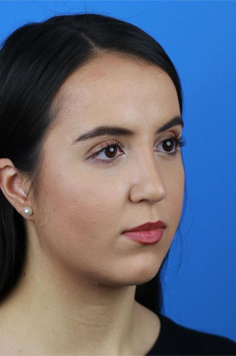 rinoplastia ultrasónica resultado mujer