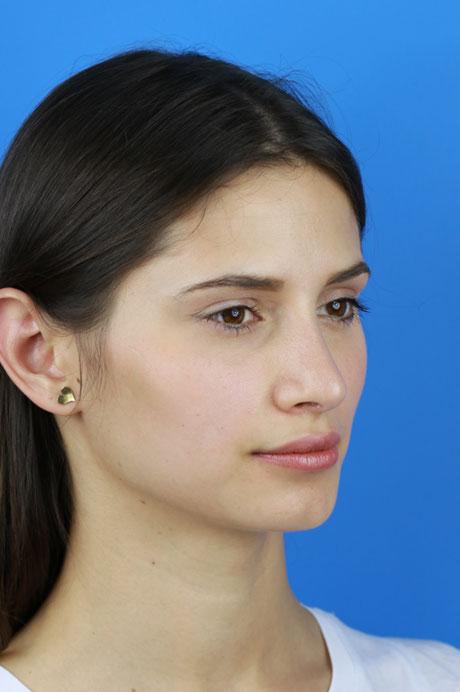 rinoplastia mejor médico nariz