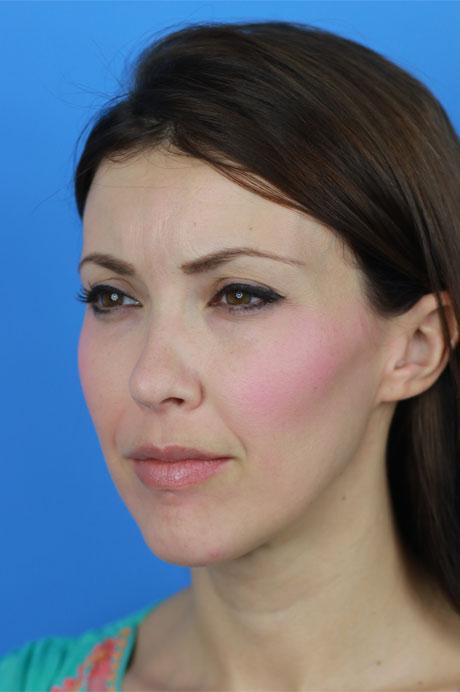 resultado rinoplastia ultrasónica mujer