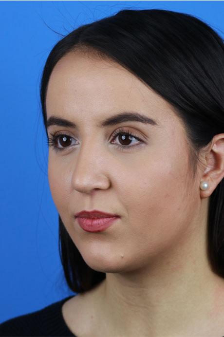 resultado operación nariz natural chica