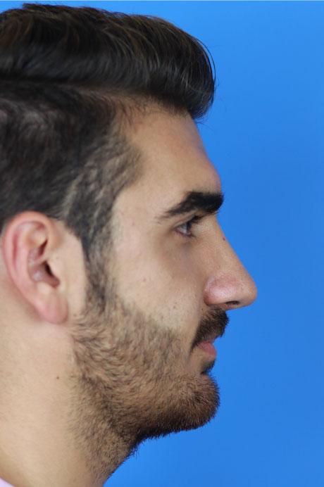 resultado operación nariz natural en hombre