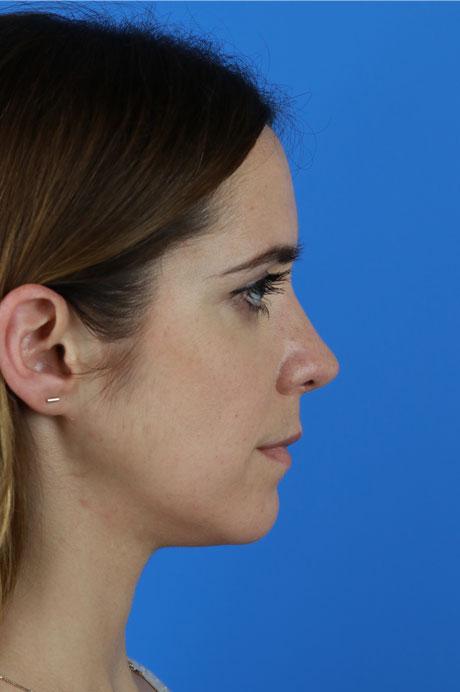 perfil nariz operada Mejor rinoplasta