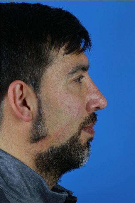 resultado rinoplastia hombre
