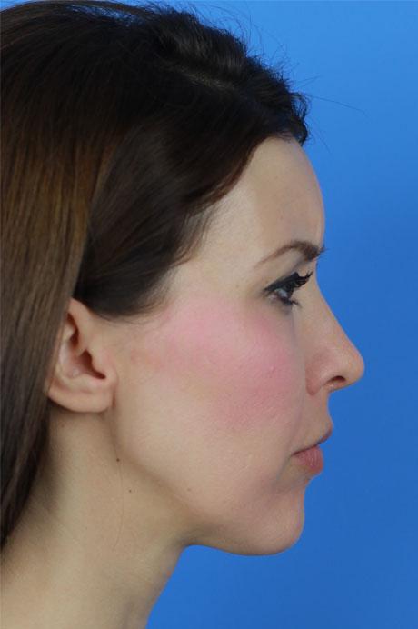nariz operada mujer Dr Casas