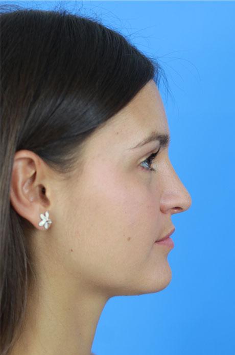 resultado natural nariz