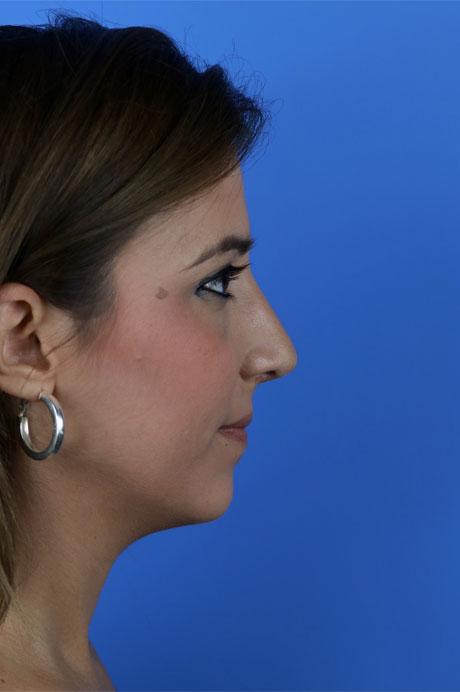 perfil nariz operada natural en chica