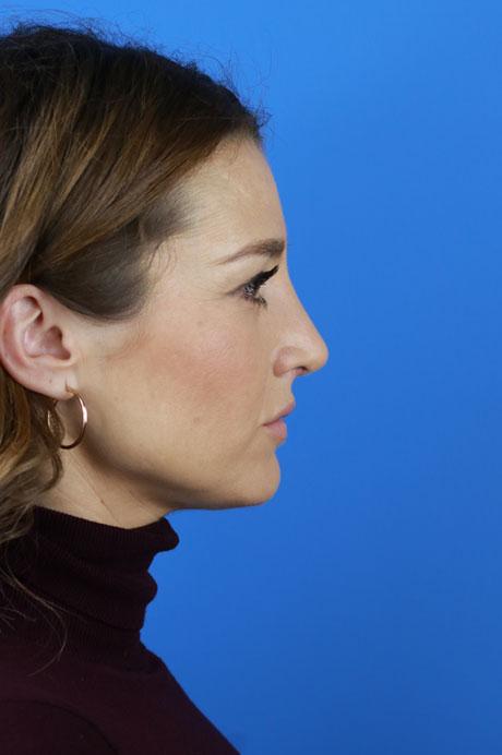 perfil nariz operada Doctor Casas