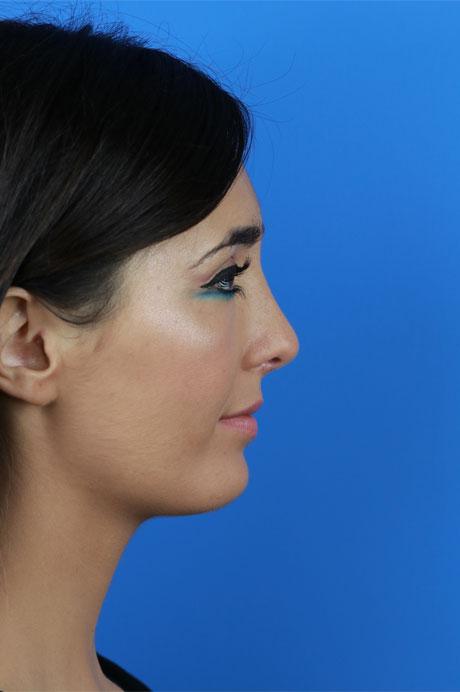 rinoplastia ultrasónica resultado natural