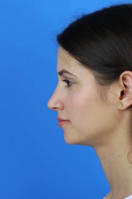 perfil operación nariz mejor cirujano