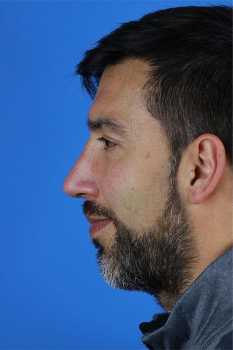 rinoplastia masculina Doctor Casas