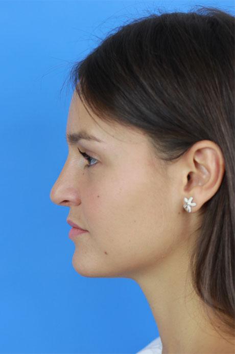resultado operación nariz natural
