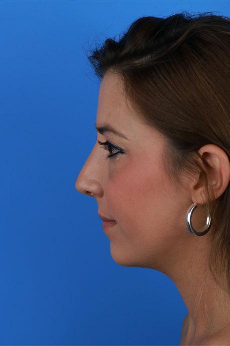operación nariz mejor rinoplasta