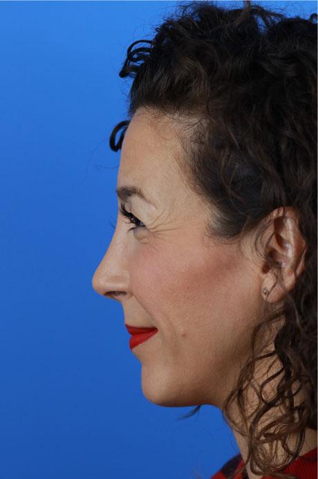 nariz operada perfil