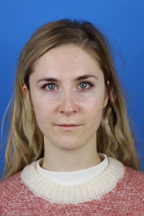 operación nariz natural mujer