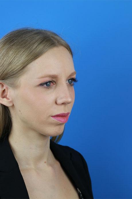 operación natural nariz chica