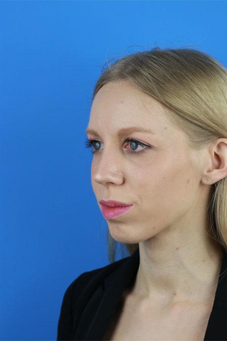 operación nariz mujer