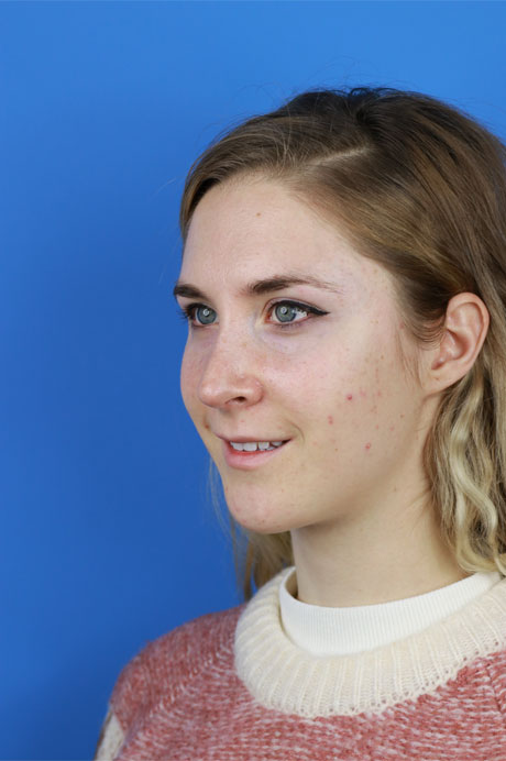 perfil nariz operada chica