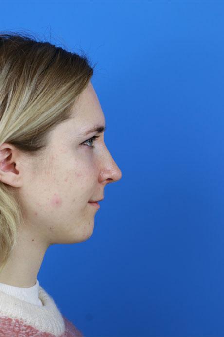 perfil nariz operada