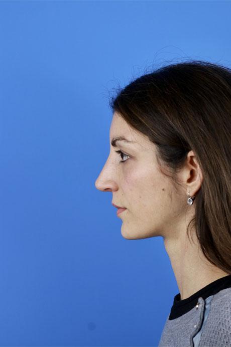rinoplastia mujer Dr Pablo Casas