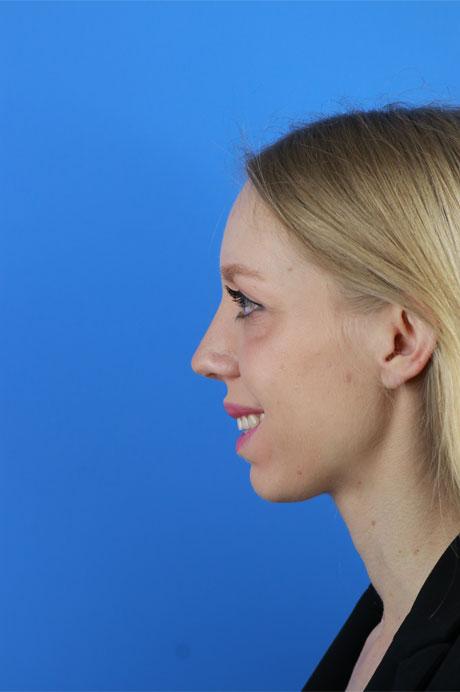 operación nariz natural
